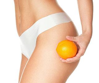 Cellulite et liposuccion